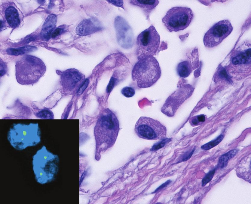La chemioterapia favorisce la resistenza al trattamento del cancro alla vescica