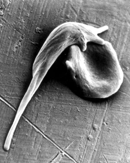 Ingegneria del genoma apre la strada alla cura dell'anemia falciforme