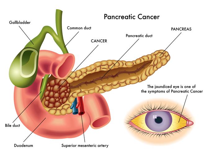 Importanti intuizioni su come il cancro al pancreas si sviluppa e si diffonde, sfidano le teorie correnti