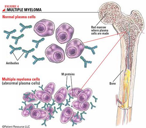 Risultati senza precedenti nel trattamento del mieloma multiplo