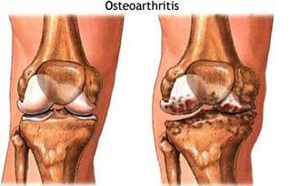 Il colesterolo alto innesca stress ossidativo mitocondriale che porta all' osteoartrite