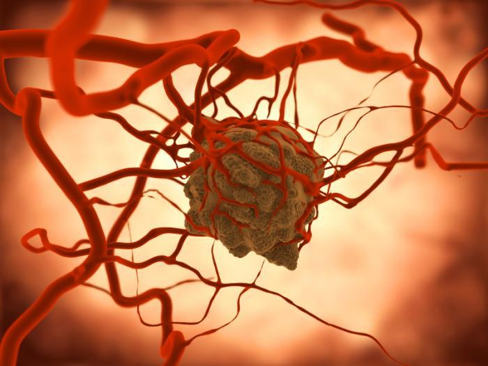 Farmaco di immunoterapia più efficace della chemioterapia nel trattamento del tumore del polmone