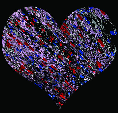 Scoperta la base epigenetica dell'ipertrofia cardiaca