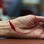 acupuncture_lowers_blood_pressure-350x234