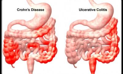 malattia di Crohn