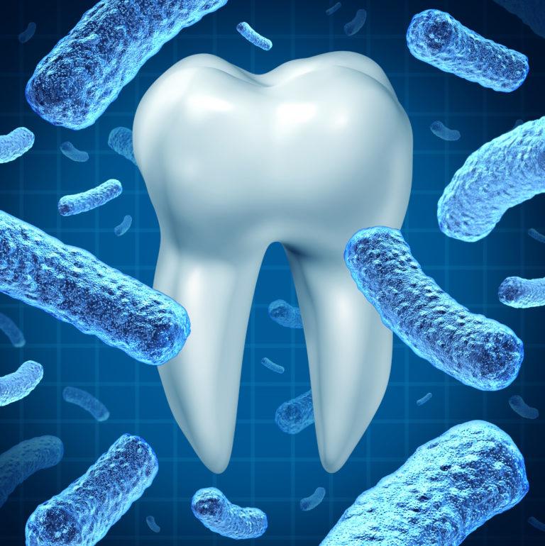 artrite reumatoide,malattia parodontale