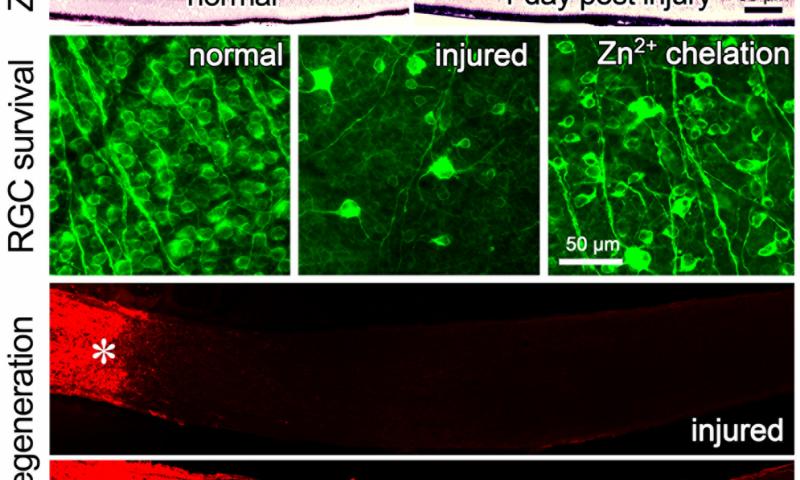 lesione nervo ottico,zinco