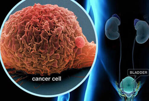 cancro della vescica