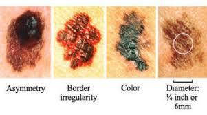 cancro della pelle
