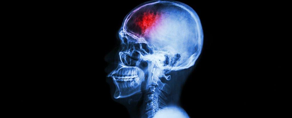 batteri intestinali,lesioni cerebrali