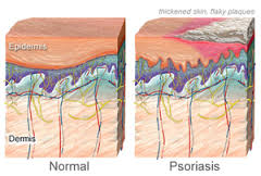 iperlipidemia,psoriasi
