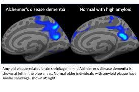 alzheimer,placche amiloidi