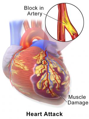 attacco cardiaco,ictus