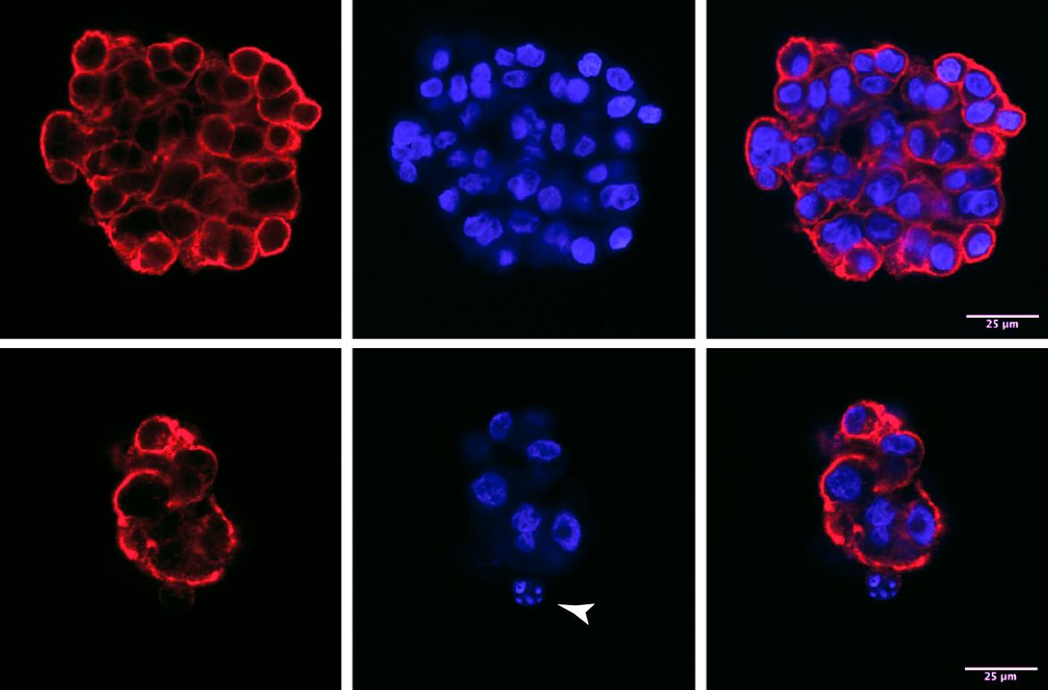 cancro del polmone non a piccole cellule
