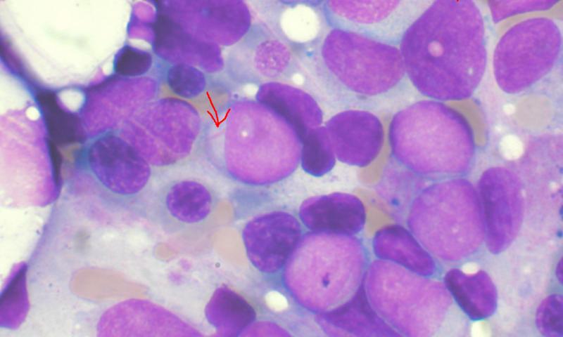 leucemia mieloide acuta