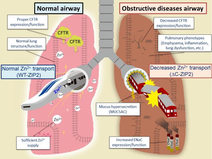 malattia polmonare ostruttiva