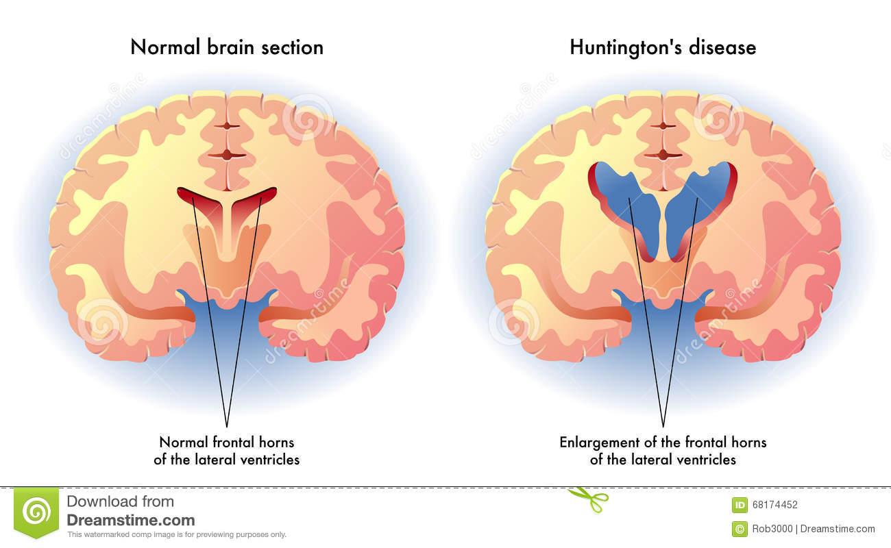 malattia di Huntington