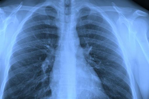 fibrosi polmonare