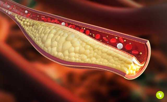 colesterolo,malattia cardiaca,statine