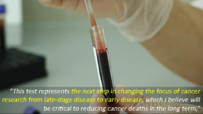 Un solo esame del sangue può diagnosticare fino otto tipi di tumore