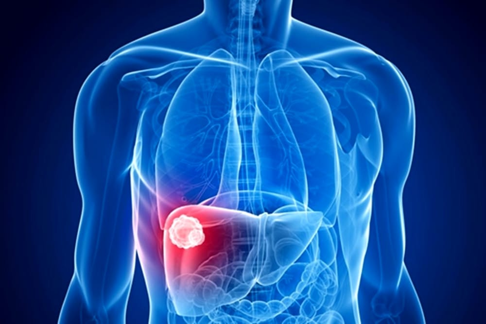 cancro del fegato