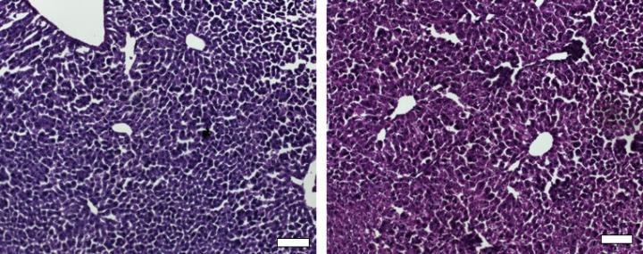 colesterolo,CRISPR/Cas9