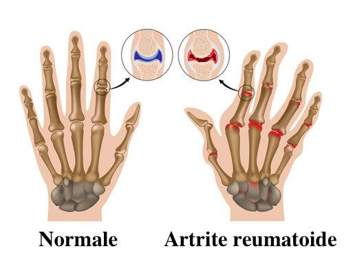 artrite reumatoide,Huntington