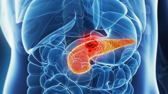 cancro del paancreas