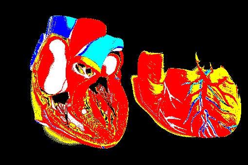 cardiomiopatia amiloide transtiretina
