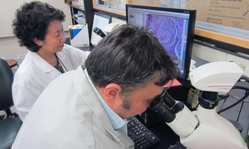 alzheimer,malattia parodontale