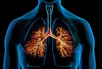 malattia polmonare interstiziale