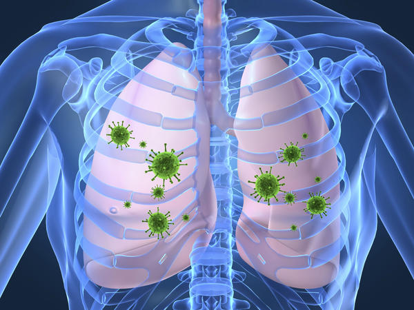 sindrome polmonare da Hantavirus