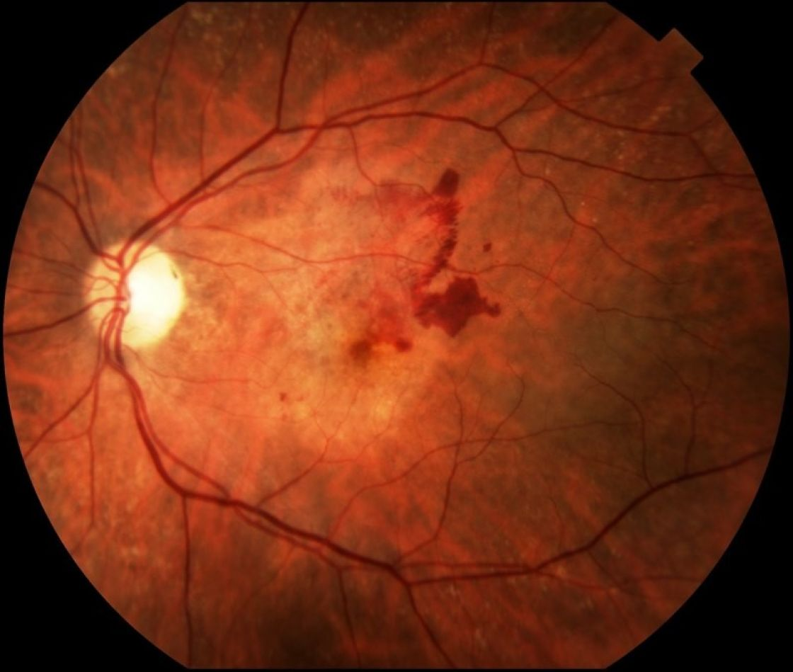 dieta,perdita della vista