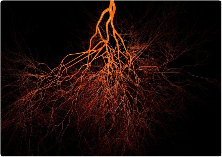 Vasi sanguigni cresciuti in laboratorio offrono speranza ai pazienti in dialisi