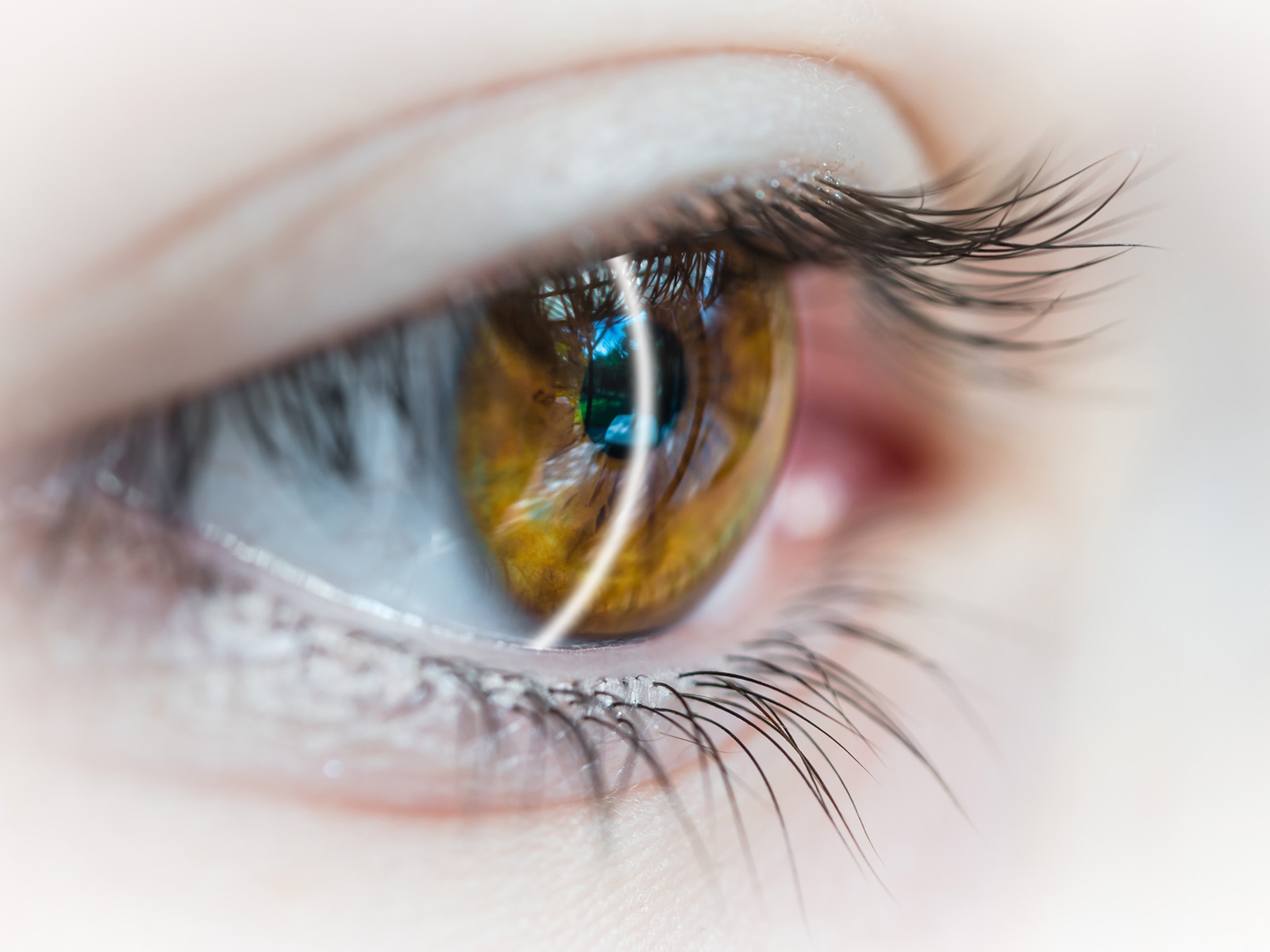 lesioni corneali