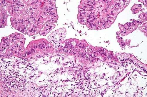 cancro ovarico