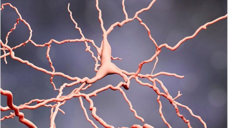 I malati di Parkinson riprendono la mobilità con un nuovo impianto
