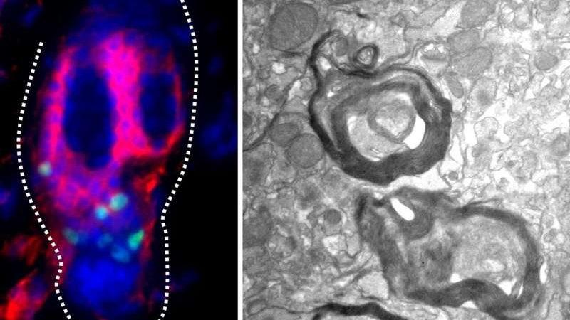 Le cellule staminali dei follicoli piliferi hanno il potenziale per riparare i neuroni danneggiati nei topi