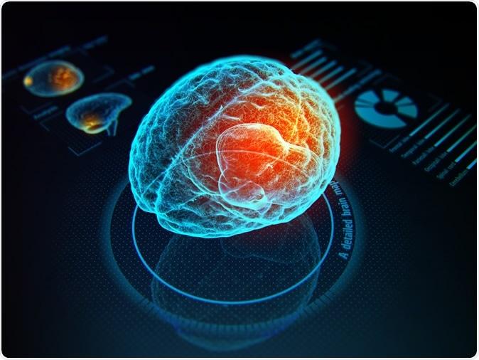 interfaccia cervello-computer