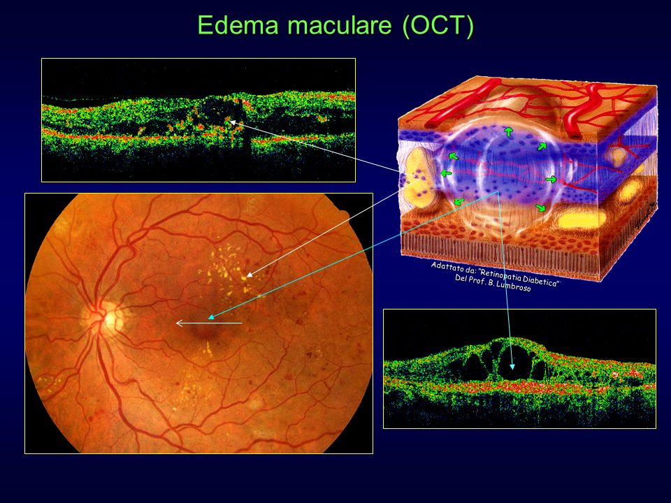 diabete,edema maculare